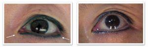 پاک کردن پخش رنگ خط چشم با ریمور تاتو کالر لیفت