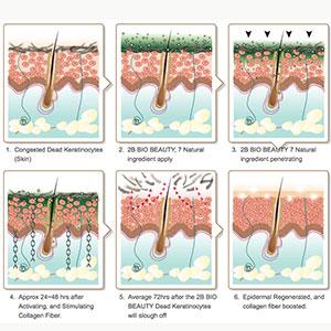 درمان و جوانسازی پوست با میکرودرم ابریژن
